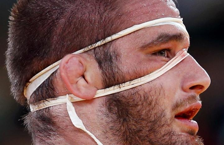 Rugby Oreja de Coliflor
