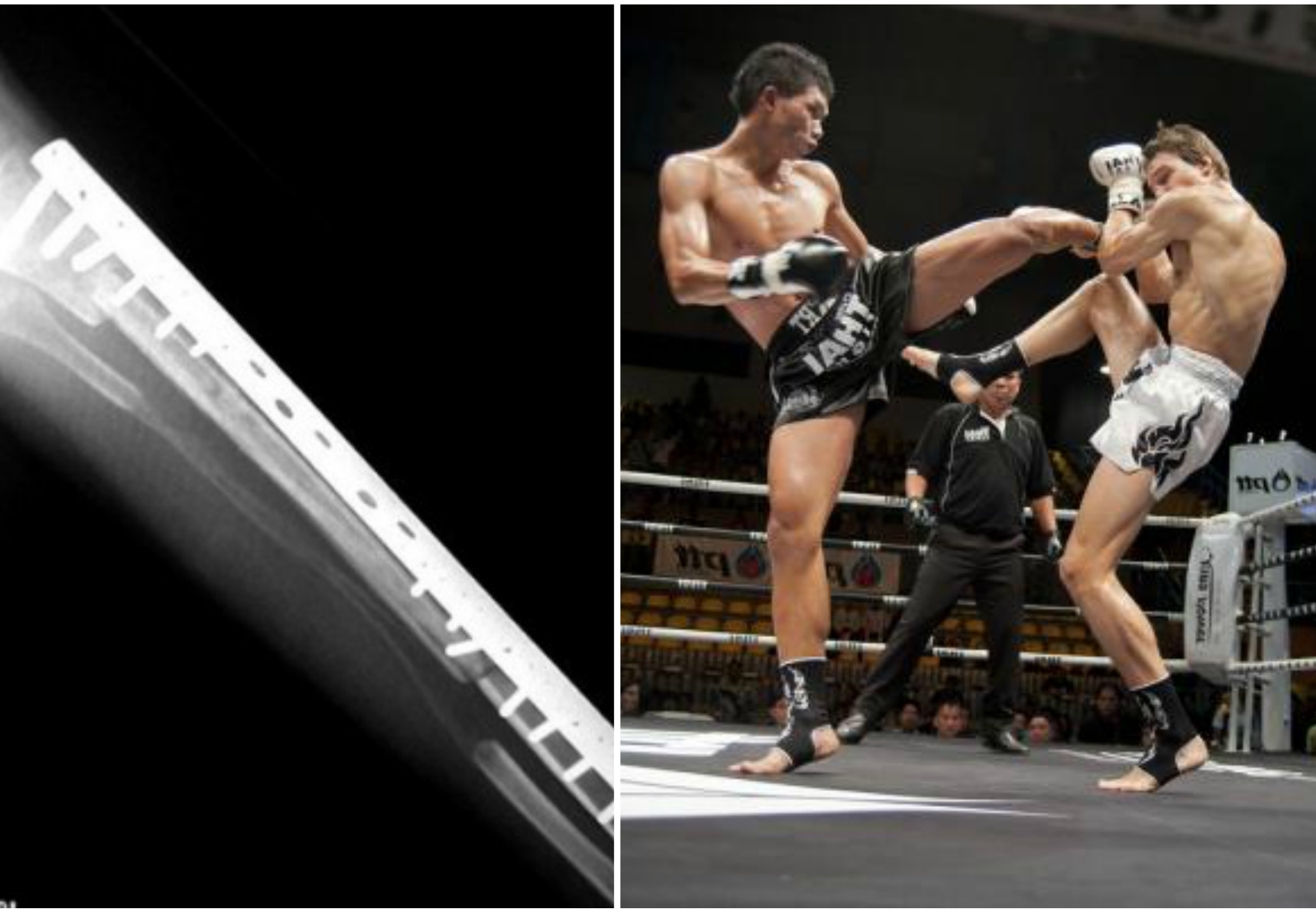 Muay Thai Fighter Suspended for Illegal Titanium Shin Implants