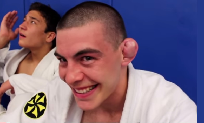 Dr Bryan Ales Discusses His Permanent Solution for Curing Cauliflower Ear