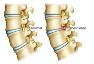 does grappling increase risk of disc herniation?, Human body
