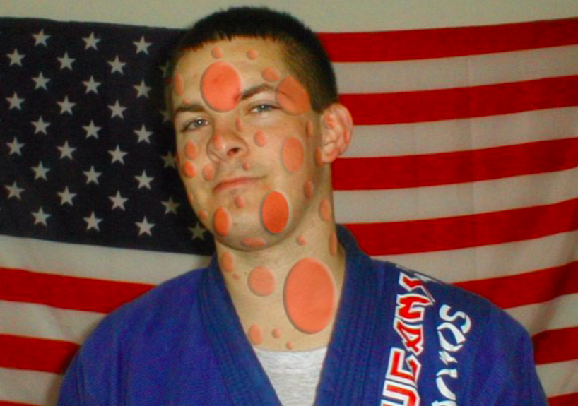 Common Jiu-Jitsu Skin Diseases & Treatments
