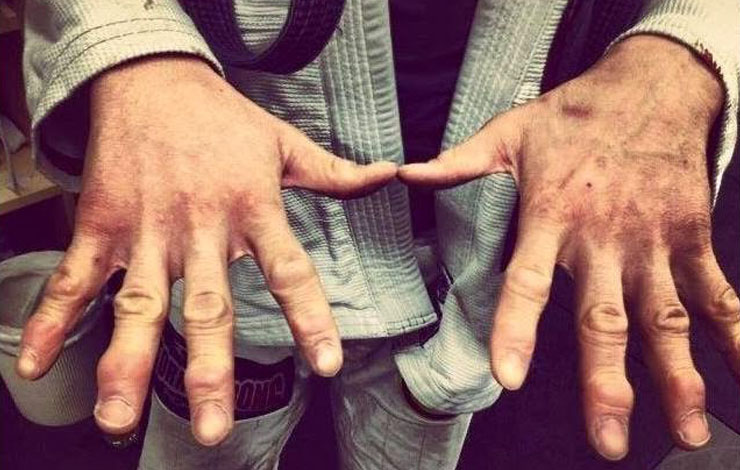 How To Save Your Jacked Up Fingers in BJJ