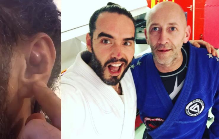 Russel Brand Got Cauliflower Ear and Had It Drained