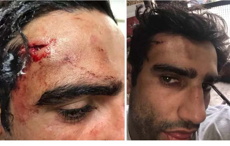 Leandro Lo Allegedly Involved In Altercation Resulting In Bottle Being Smashed On His Head