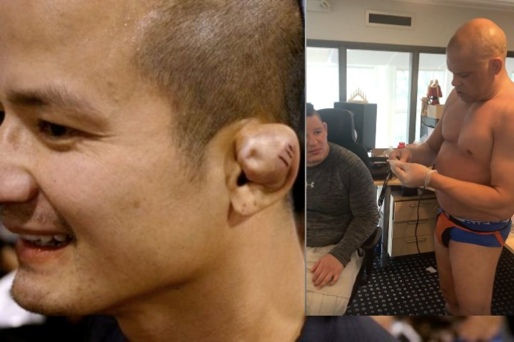 You've Been Doing It Wrong: Here's a Brilliant Way Of Draining a Cauliflower Ear