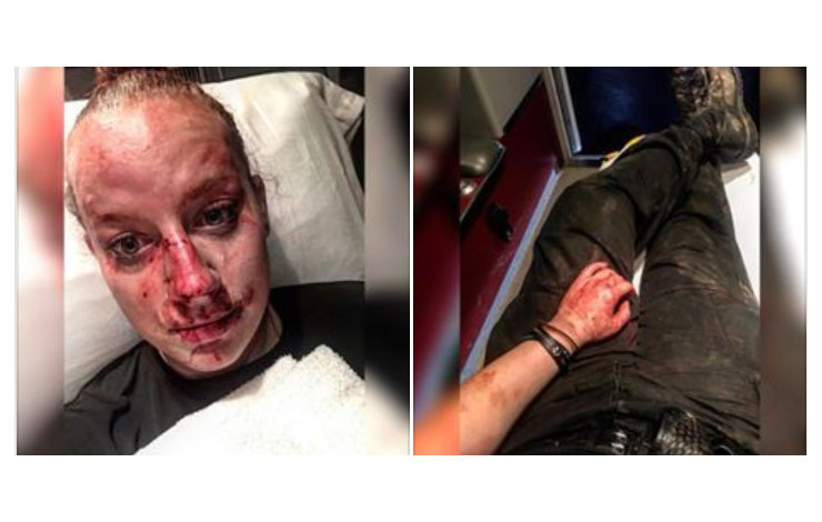 Police Officer Credits Jiu-Jitsu And Krav Maga For Surviving A Fight With Brutal Outcome