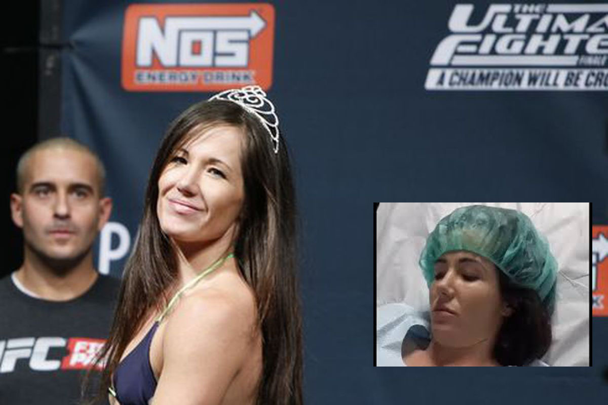 Ex-UFC fighter Angela Magana in coma following complications from emergency surgery