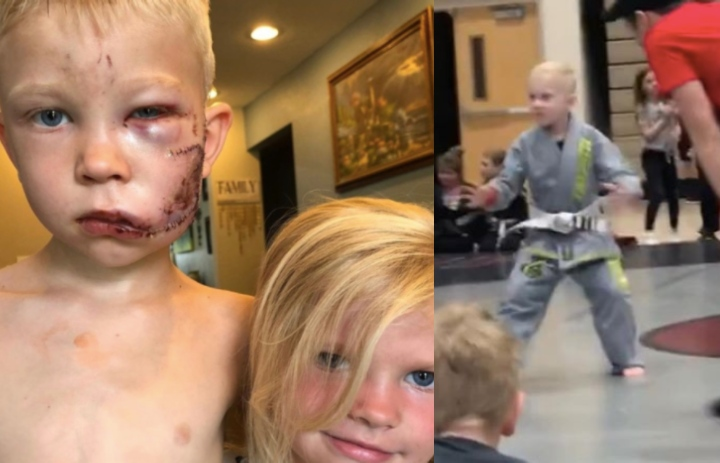 The Heroic 6yr old Who Saved His Sister From a Dog Attack is a Jiu-Jitsu Practitioner