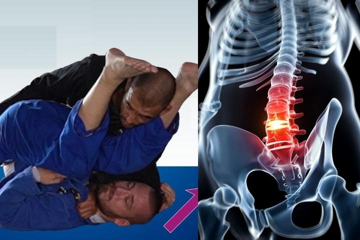 Can You Train Jiu-Jitsu with a Herniated Disc? BJJ Black Belt Shares His Experience